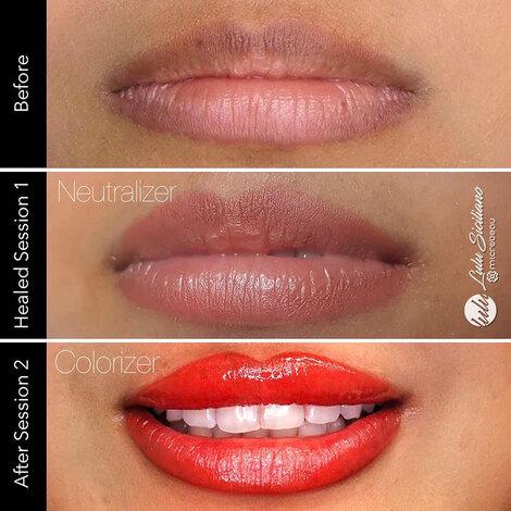 EvenFlo Lip Corrector Set