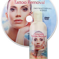 Cosmetic Tattoo Removal - Sold
